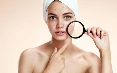 Comment en finir avec l'acné de l'adulte? Commencez par déstresser!